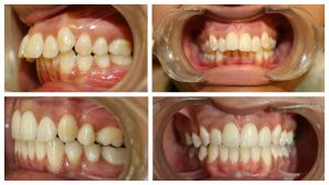 Orthodontist in Delhi