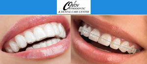 Invisalign Treatment in Delhi