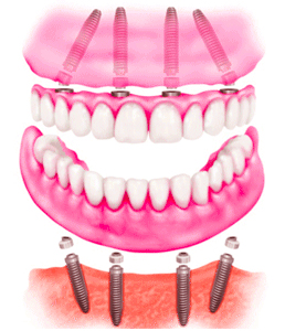 Dental Implant Clinic in Delhi