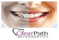 clearpath-or-invisalign1