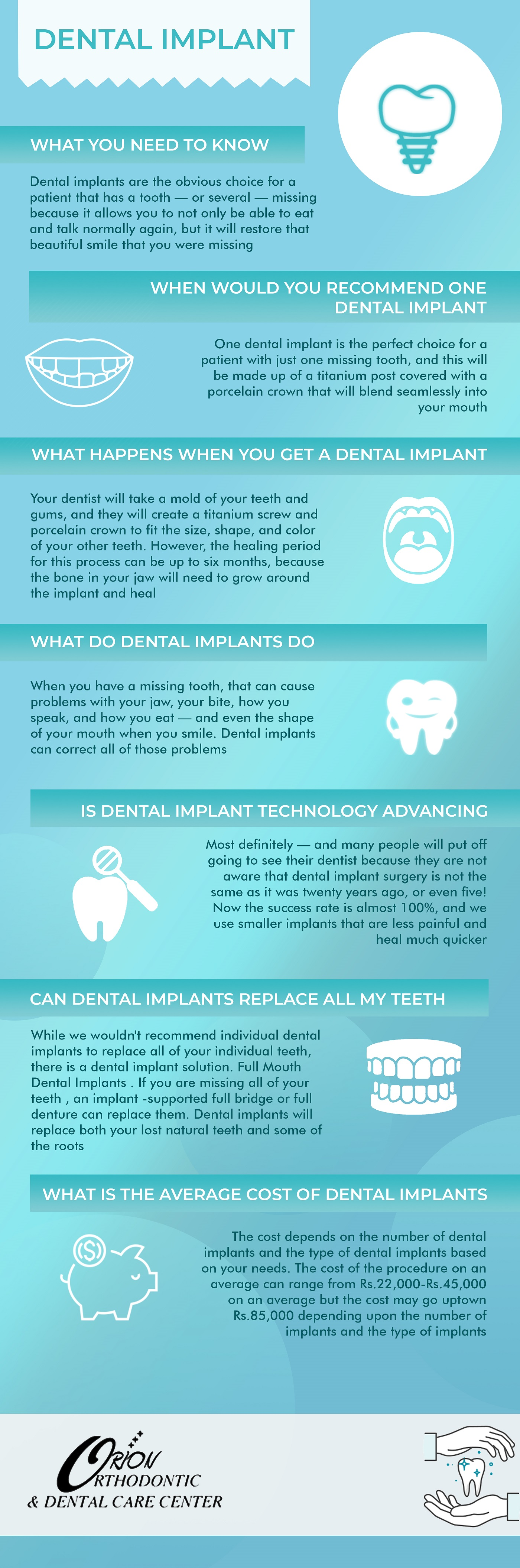 ICH_Orion_INFOG_Dental Implant