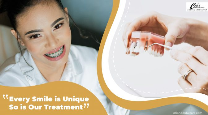 The types of dental braces their advantages, disadvantages, cost and choosing the best option for you